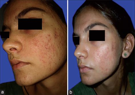 10 glycolic acid peel side effects efficacy of modified jessner s peel and 20 tca versus 20