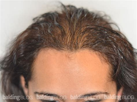 pics of scalp micropigmentation on people with long hair balding blog pigments archives page 4 of 13 wrassman