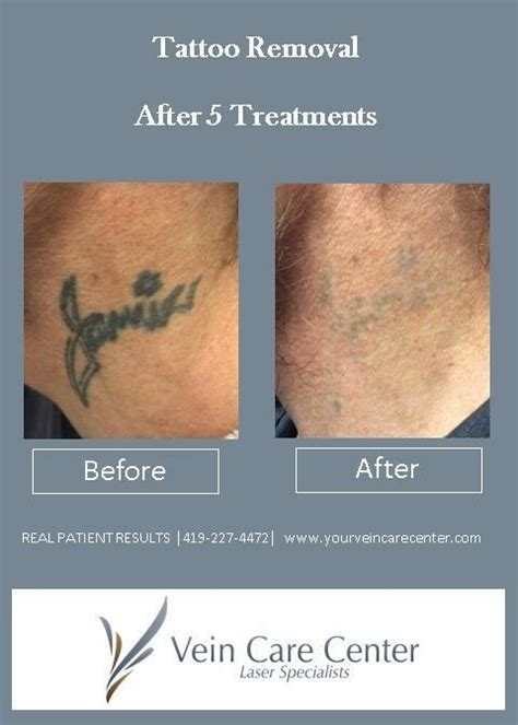 does tattoo removal hurt laser removal ohio lima celina findlay