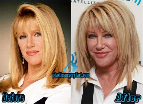 suzanne somers celebrity plastic surgery 24 suzanne somers plastic surgery before and after
