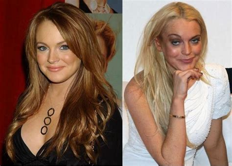 lindsay lohan before and after botox and drugs
