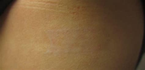 tattoo removal nj laser removal hoboken nj removal hoboken