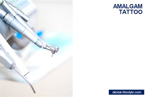 amalgam tattoo amalgam health tips and advices dental