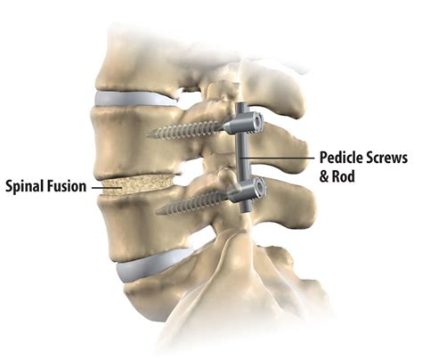 best spinal fusion surgeons treatment options minimally invasive spinal surgery