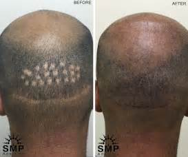 pics of scalp micropigmentation on with hair scalp micropigmentation adelaide scalp tattoo for hair loss