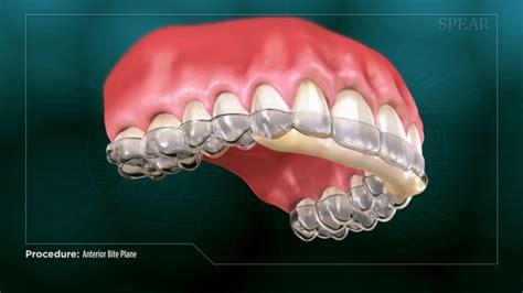 anterior bite plane fort worth dentist  street