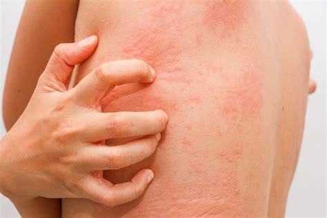 imagenes alergia al latex 10 mitos sobre las alergias