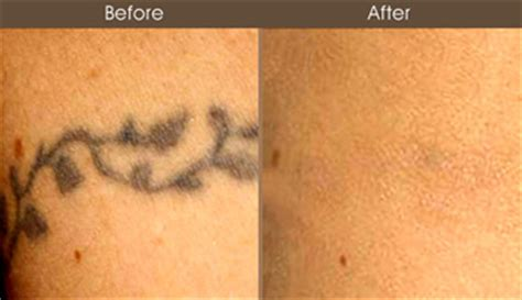 100 laser tattoo removal manhattan nyc tattoo