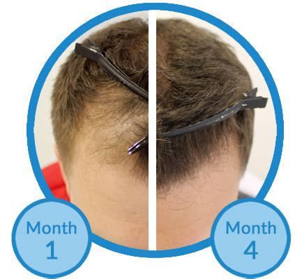 rogaine success stories in men what is the best way to treat a receding hairline