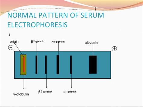 protein electrophoresis serum protein electrophoresis their clinical importance