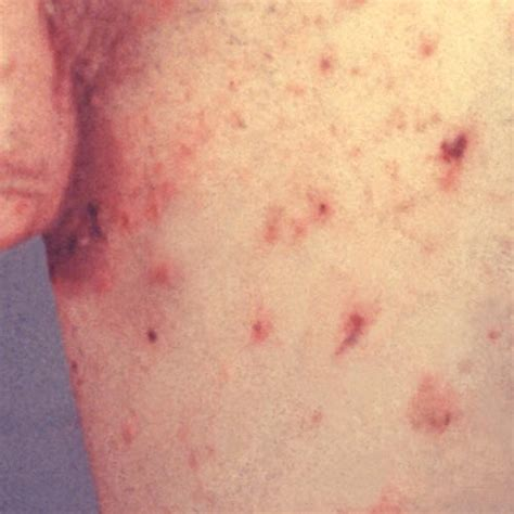 scabies symptoms  images rash treatment home