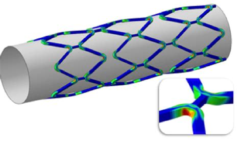 Platform Tents by Abaqus Simulation Of Stents For A Narrowed Artery