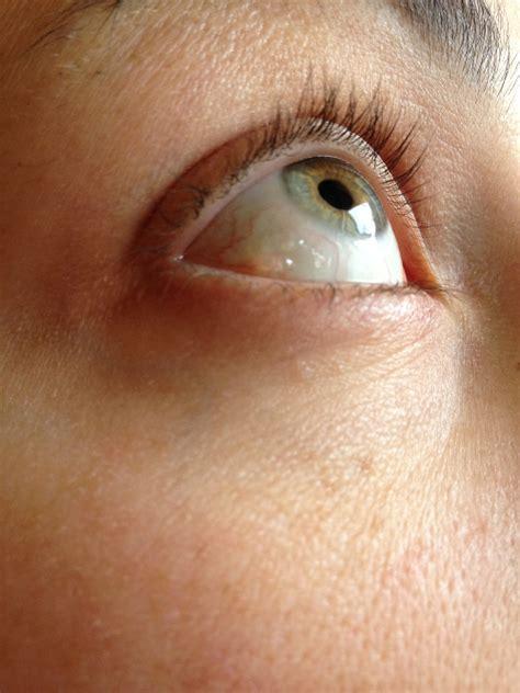 cisti in testa sintomi enorme ciste rimossa dalla testa intervento incredibile