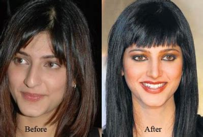 bollywood actresses with eye problems superstar plastic surgery hollywood bollywood