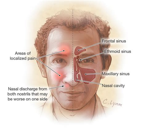 Can Detoxing Cause Sinus Inflammation by Author Insights Treatment Of Acute Sinusitis With