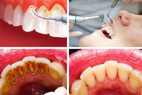 Biaya Membersihkan Karang Gigi Hitam 9 Cara Menghilangkan Karang Gigi Alami Dan Medis