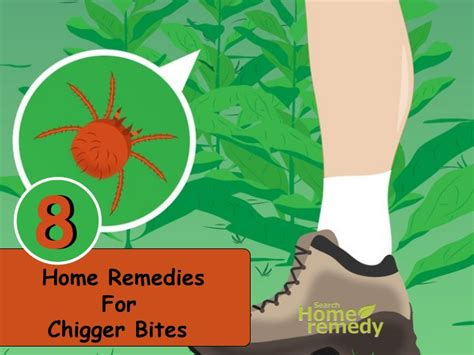 8 best home remedies for chigger bites search home remedy
