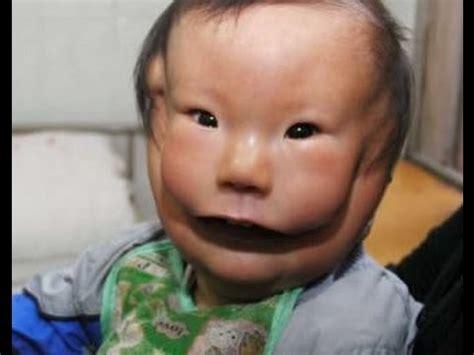imagenes de niños que nacen con malformaciones casos de malformaciones congenitas en ni 209 os youtube