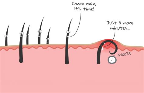 how to treat an ingrown hair on chin how to get rid of ingrown facial hair causes prevention