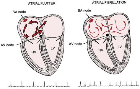 atrial fibrillation diagram supraventricular arrhythmias part ii atrial flutter and