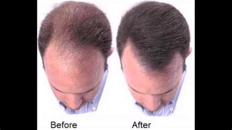 does reducing 5ar regrow hair how to treat baldness or regrow hair on bald spot
