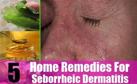 17 best images about seborrheic dermatitis on