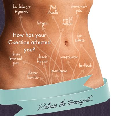 c section incision pain 2017 healthy living business guide dal march 2017