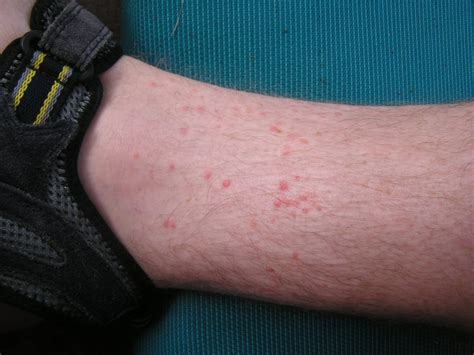 bed bug bites on feet help i m getting bit a guide to identifying bug bites
