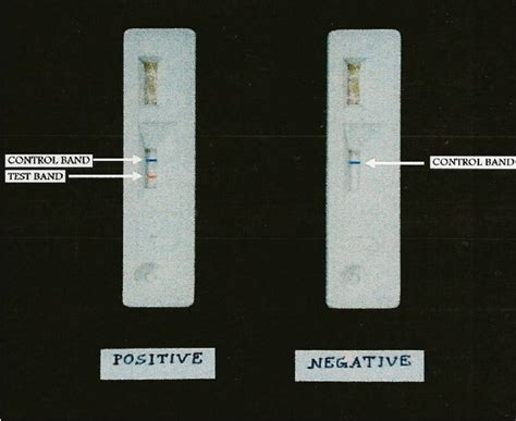 Stool Antigen Test by Current Laboratory Diagnosis Of Opportunistic Enteric