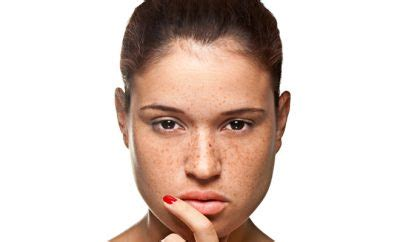 10 Ways To Get Rid Of Freckles by Top 10 Ways To Get Rid Of Freckles And Age Spots