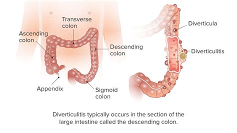 and treatment diverticulitis 101 symptoms causes and treatment