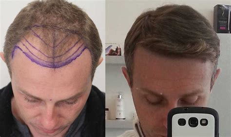 hair transplant before and after how much does hair transplantation cost dr rahal
