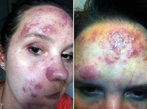 how to cure a red swollen nose rosacea support group rosacea treatment caper cream cured woman s painful skin