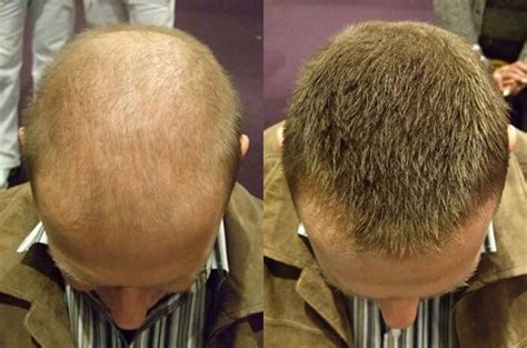 kahle stellen super million hair