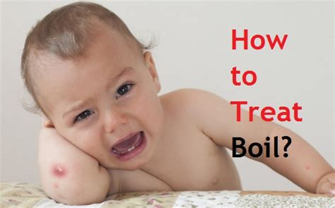 How to Treat Boil? How To Treat Boils On Buttocks At Home