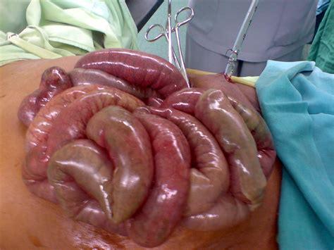 colon non tumor infarct