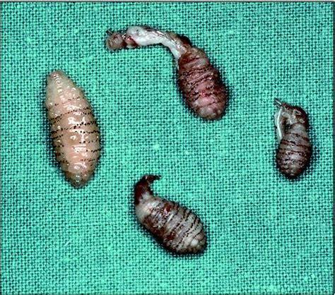 ciste interno coscia le larve di dermatobia hominis attaccano anche gli esseri