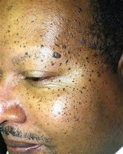 light spots on american age spots and mole on skin skin textures