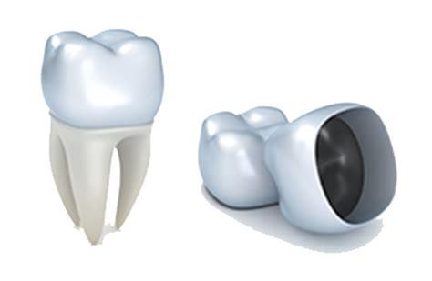 comfort dental gold plan cost general dentistry todays dental comfort