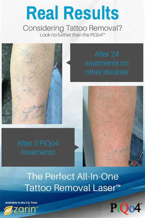 laser tattoo removal memphis 50 best laser removal images on