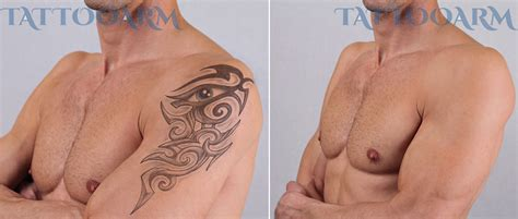 tattoo removal without laser how to remove permanent tattoos without laser surgery