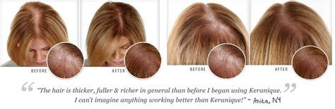 keranique before and after photos keranique 174 hair regrowth solution for women start