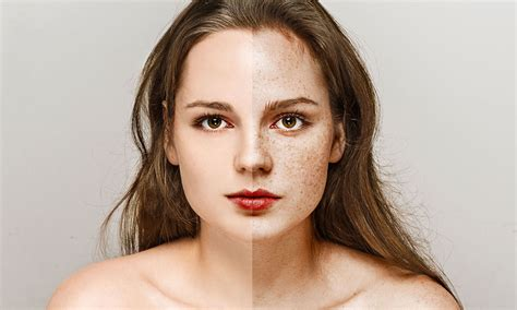 4 New and healthy freckles home remedies you should know!