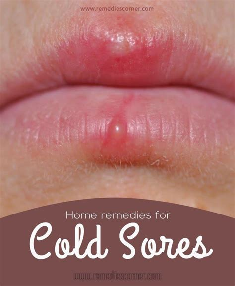 home remedies for cold sores remedies corner home