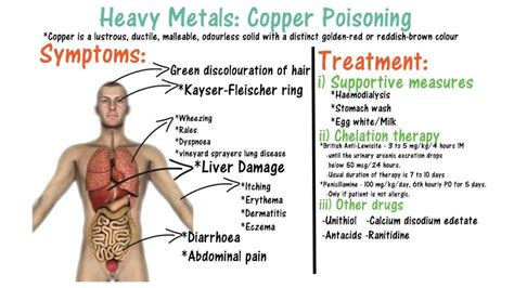How Do Copper Detox Symptoms Last by Copper Poisoning