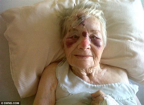 Millbrook Bed Great Grandmother 94 Suffers Horrific Injuries After