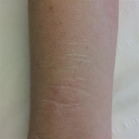 medical tattooing for scars deliberate self harm scars medicare cosmetics