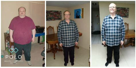 New Westminster Detox by Weight Loss Before And After Transformations New
