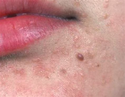 warts treatment flat warts on pictures treatment causes removal