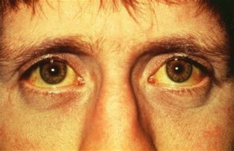 Obat Herbal Sakit Mata Kuning obat penyakit herbal alternatif untuk sakit kuning